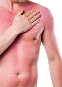 Two thirds of britons deliberately burn to try and get a deeper tan