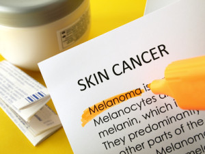 skin cancer melanoma